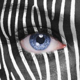Sono un gonfiore dell'area sub-oculare